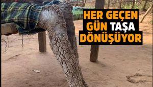 Dünya Şokta! 7 Yaşındaki Kızın Vücudu Taşa Dönüşüyor