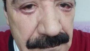 """Göz doktoruna """"Hatalı estetik"""" iddiası..."""