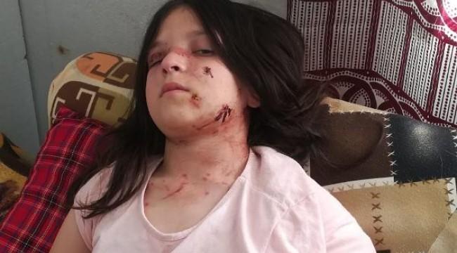 Samsun'da pitbull saldırısına uğrayan Tuğba'ya, 60 dikiş atıldı