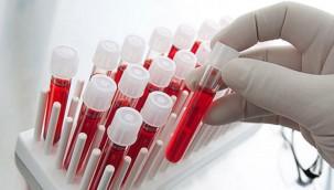 Koronavirüs Testi Pozitif Çıkana Para Verilecek
